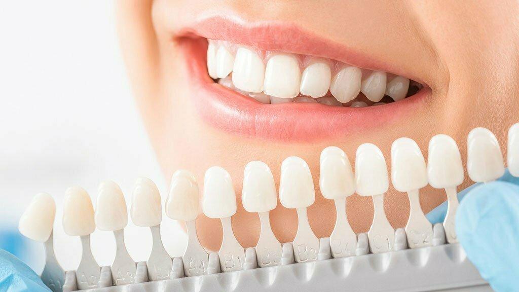 رنگ طبیعی دندان چه رنگی است