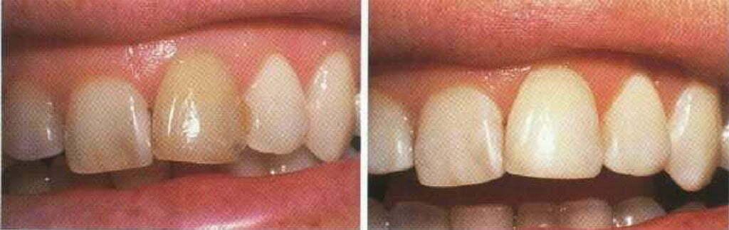 بلیچینگ یک دندان