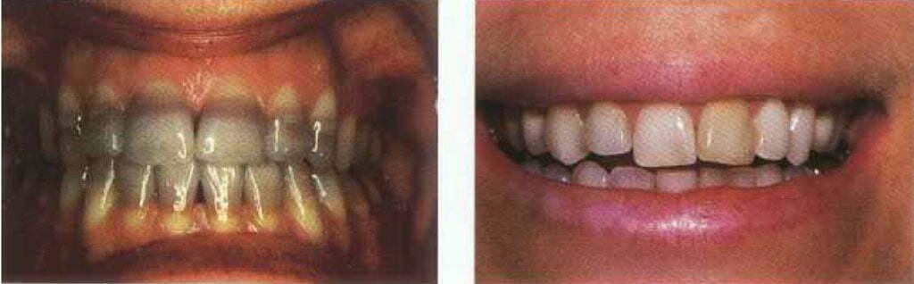 داروهای تغییر رنگ دندان