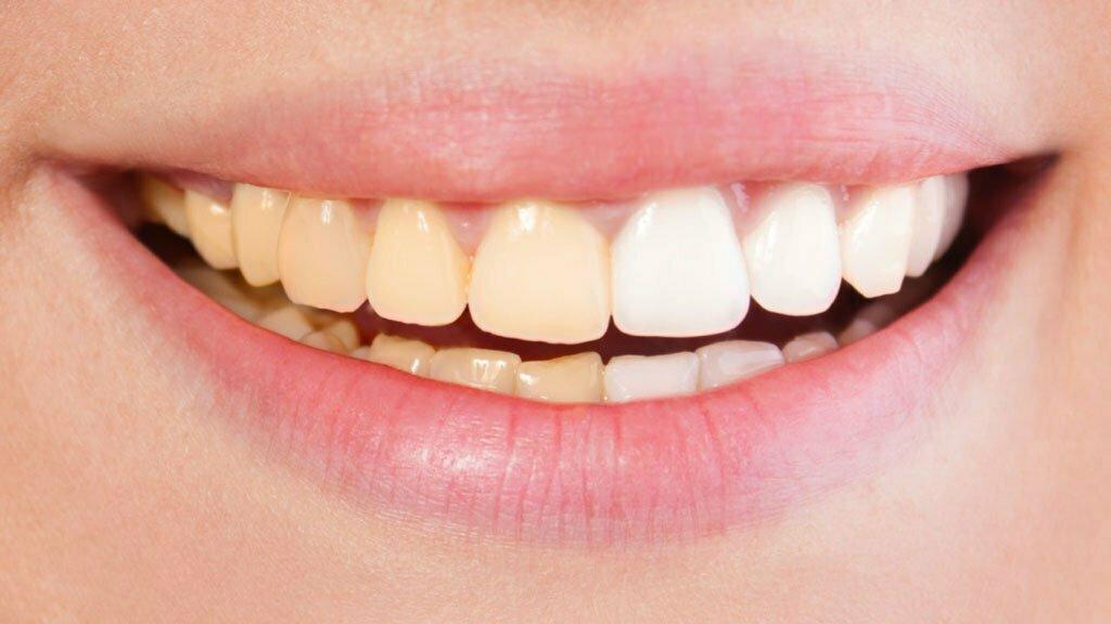بلیچینگ و سفید کردن دندان خانگی
