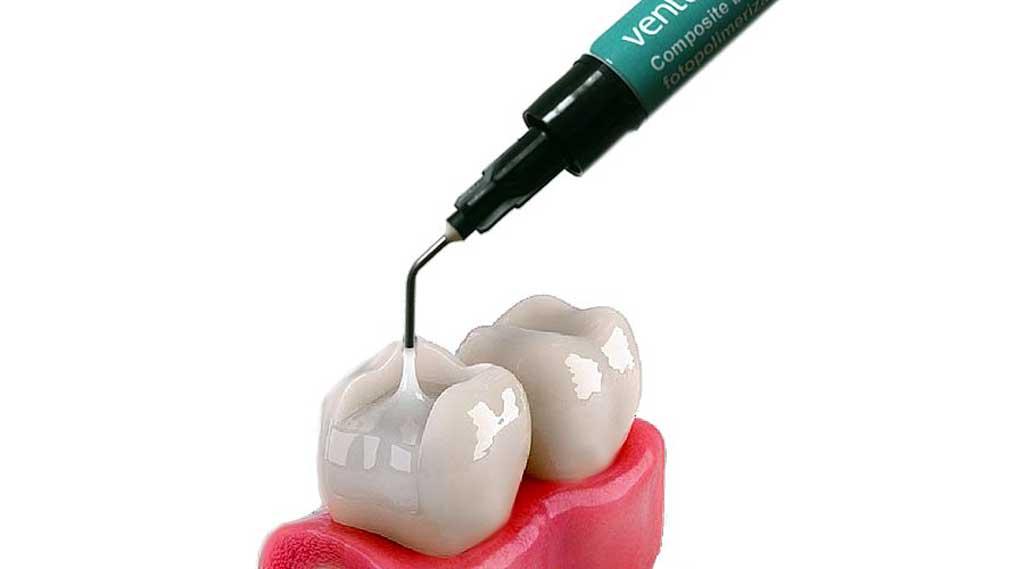 فروشگاه اینترنتی خرید کامپوزیت دندان