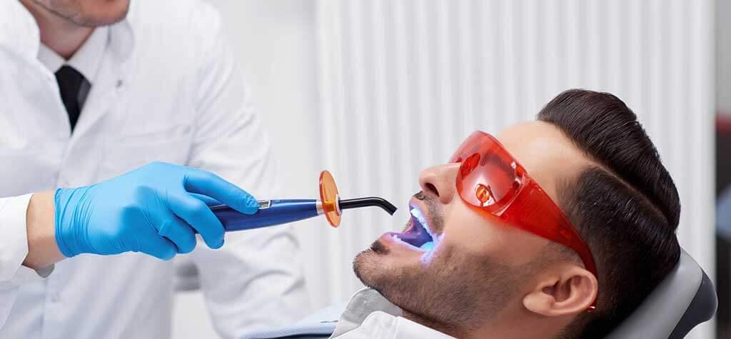 لایت کیور دندانپزشکی چیست