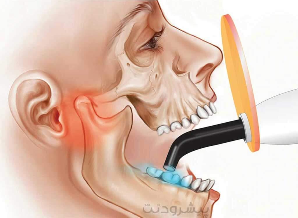 لایت کیورد دندان های کامپوزیت