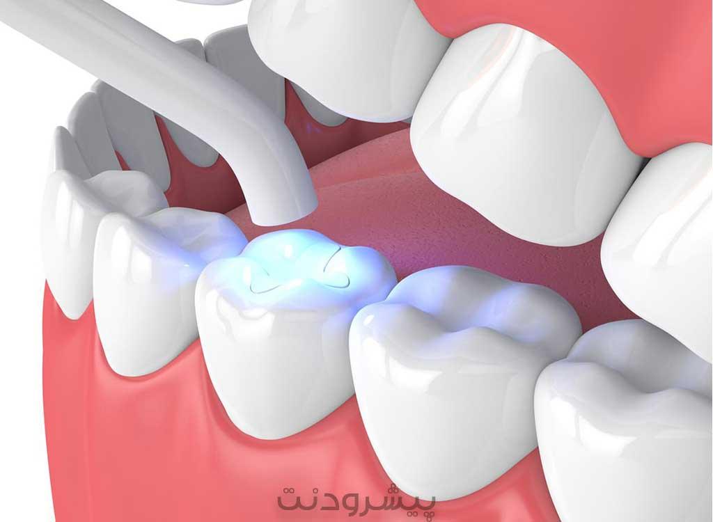 سفت شدن کامپوزیت دندانپزشکی